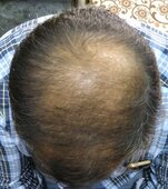 refund of amount as hair transplant failed